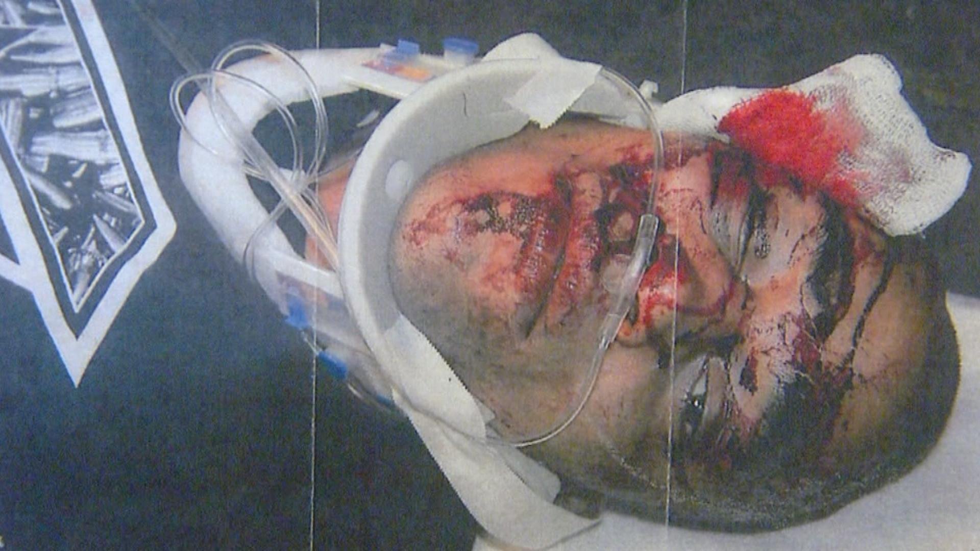 Photo of Alexander Landau's injuries (credit: CBS)