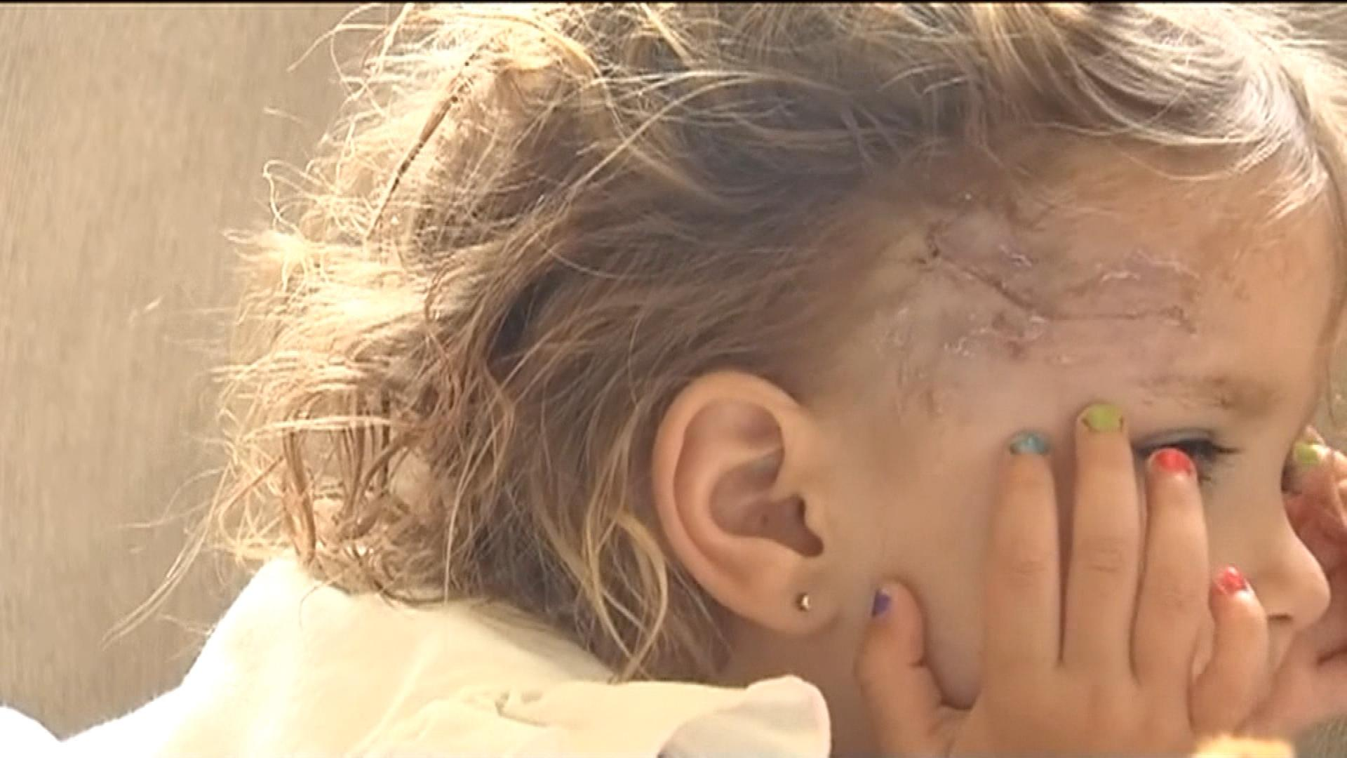 Injuries to the 2-year-old who was attacked by a coyote (credit: CBS)