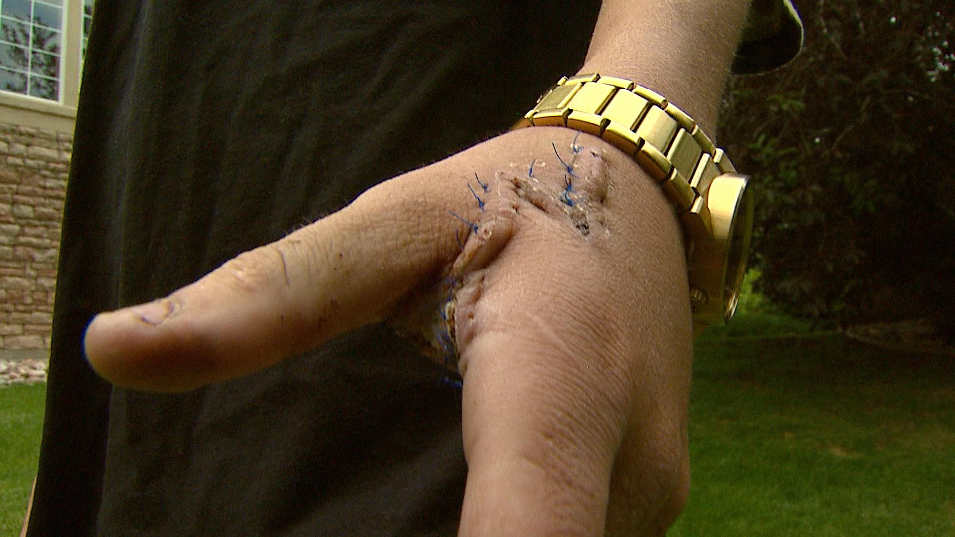 J.J. Jellis shows the wound on his hand from grabbing a machete (credit: CBS)