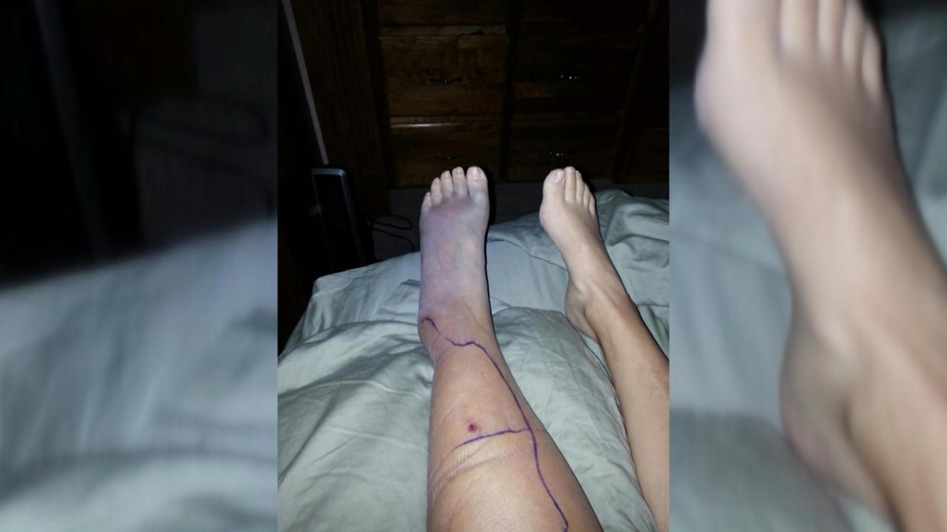 Kim Rees's leg after the bite (credit: CBS)