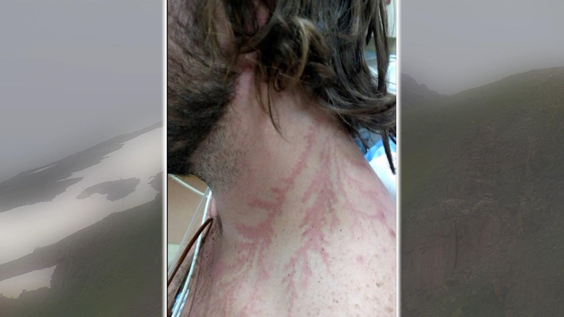 Branch-like marks on Jonathan Hardman (credit: CBS)