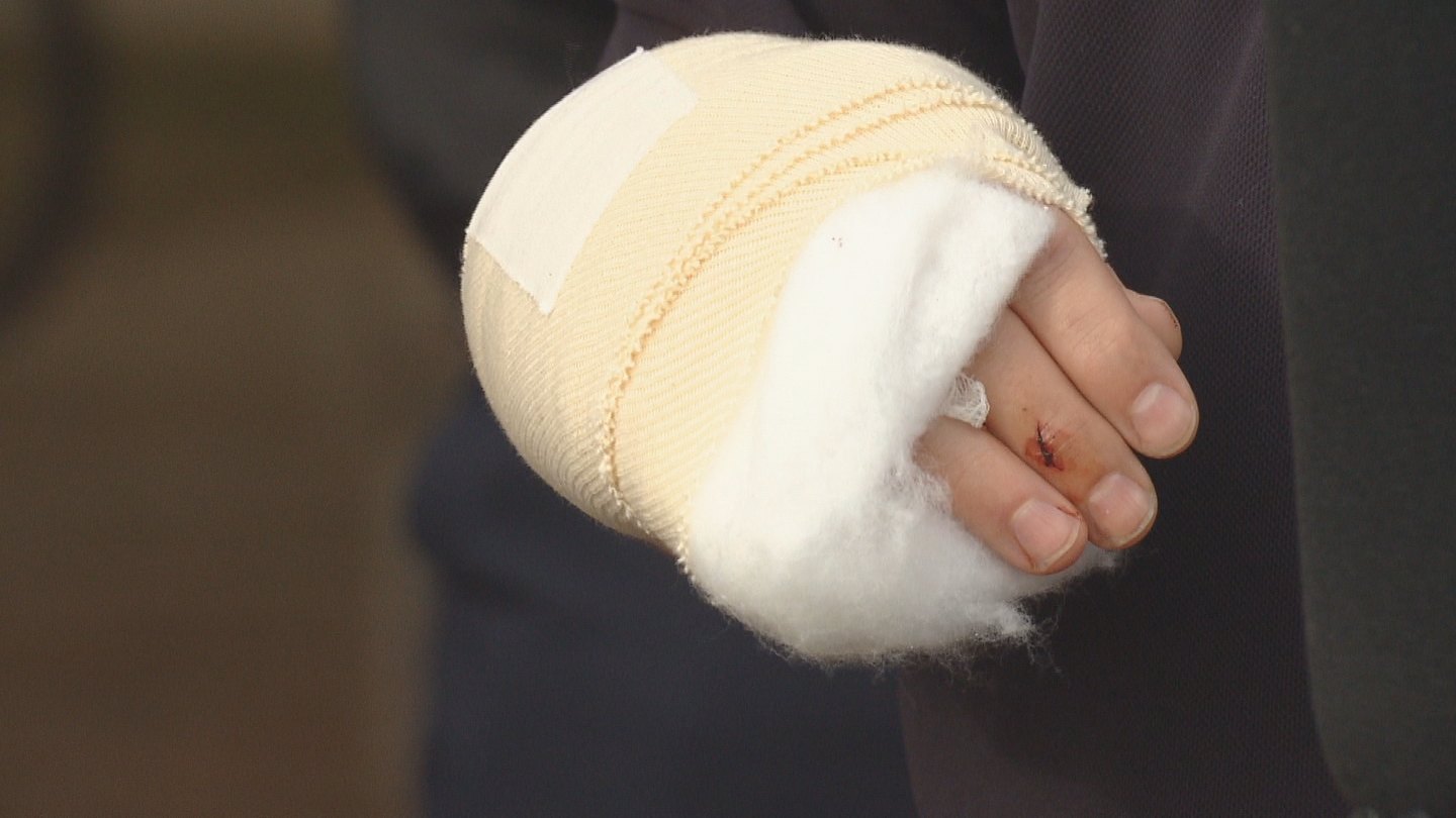 Denver Fire Chief Eric Tade's injuries (credit: CBS)